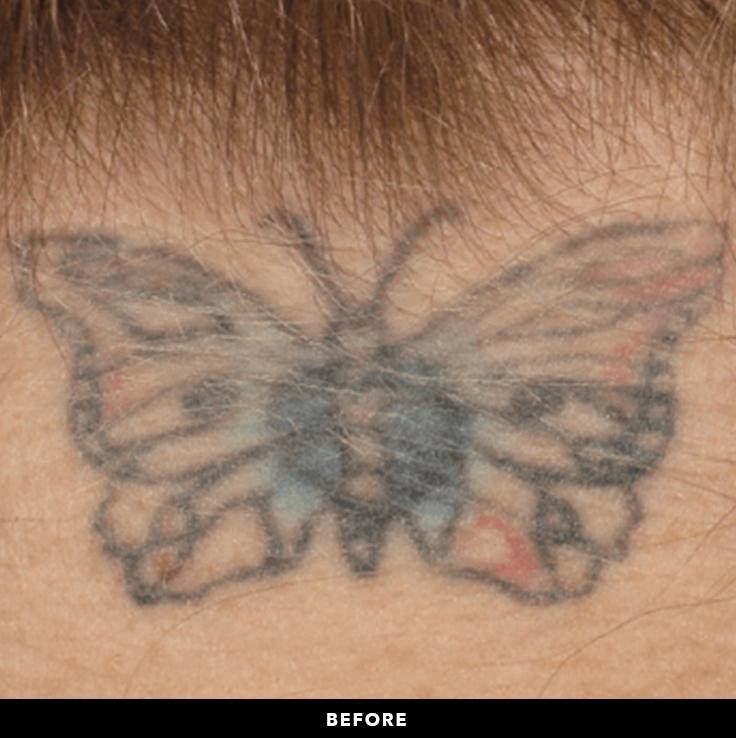 PicoSure - Tatoo Removal - RenewMD Beauty & Wellness MedSpa Fremont, Folsom