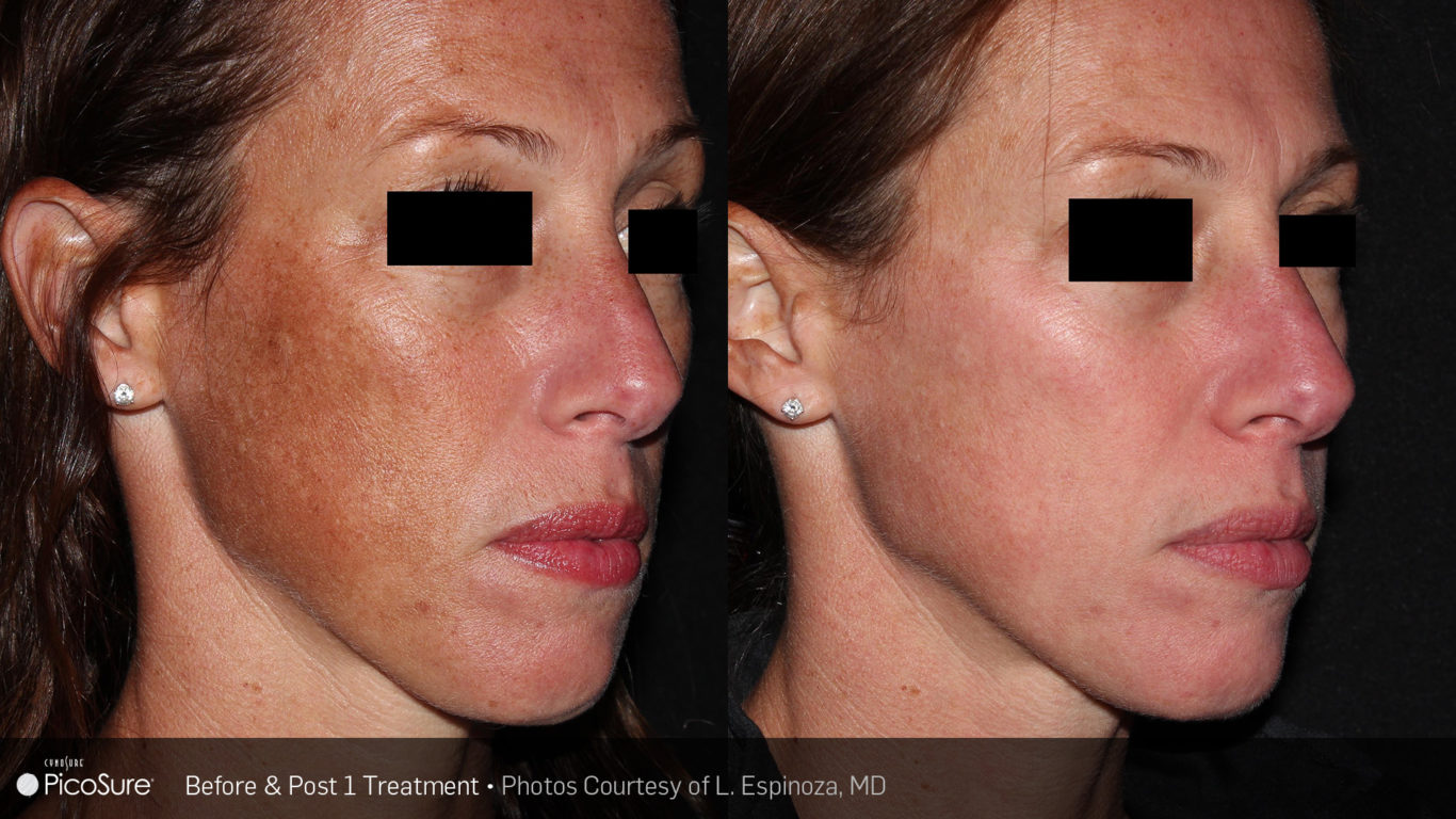 PicoSure Before After - RenewMD Beauty & Wellness MedSpa Fremont