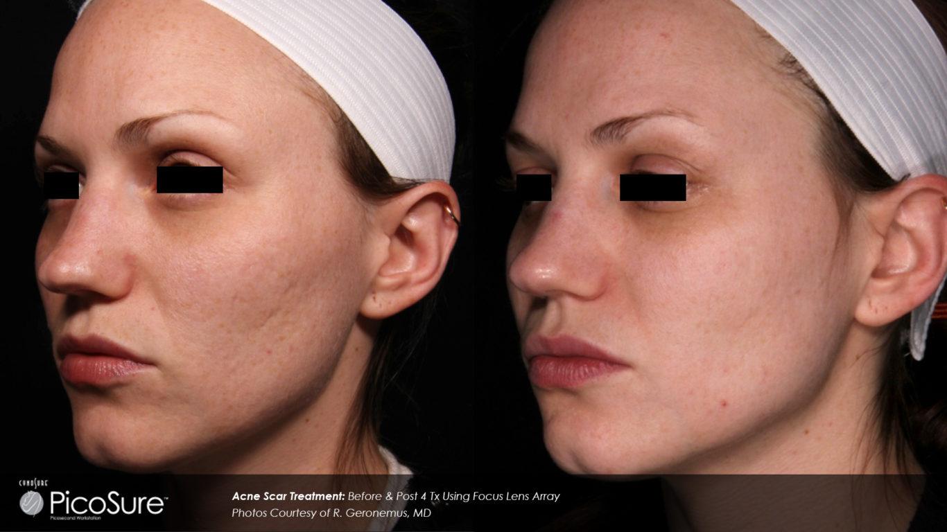 PicoSure Before After - RenewMD Beauty & Wellness MedSpa Fremont