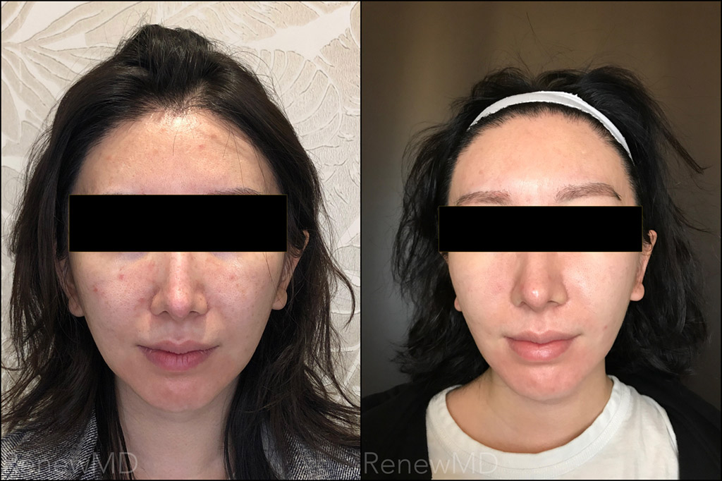 PicoSure Skin Lightening Before and After