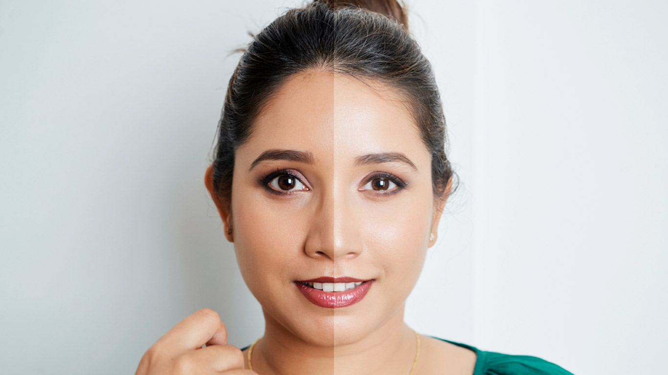 Ask Dr. Sethi: Skin Lightening