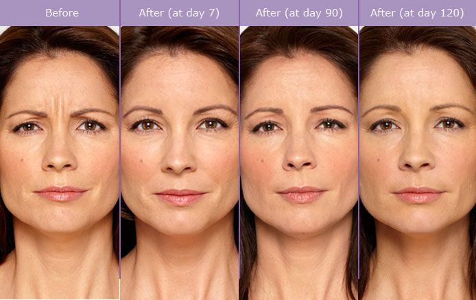 Botox - RenewMD Beauty & Wellness Medspa Fremont