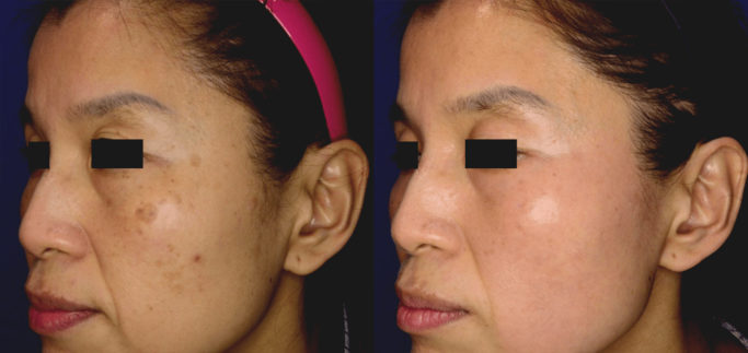PicoSure Before and After - RenewMD Beauty & Wellness MedSpa Fremont