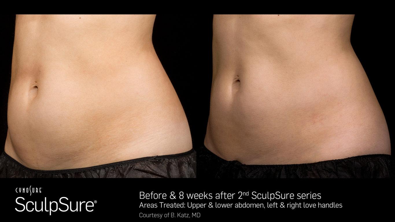 SculpSure Before After - RenewMD Beauty & Wellness MedSpa Fremont