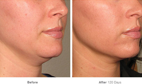Ultherapy Before and After - RenewMD Beauty & Wellness MedSpa Fremont