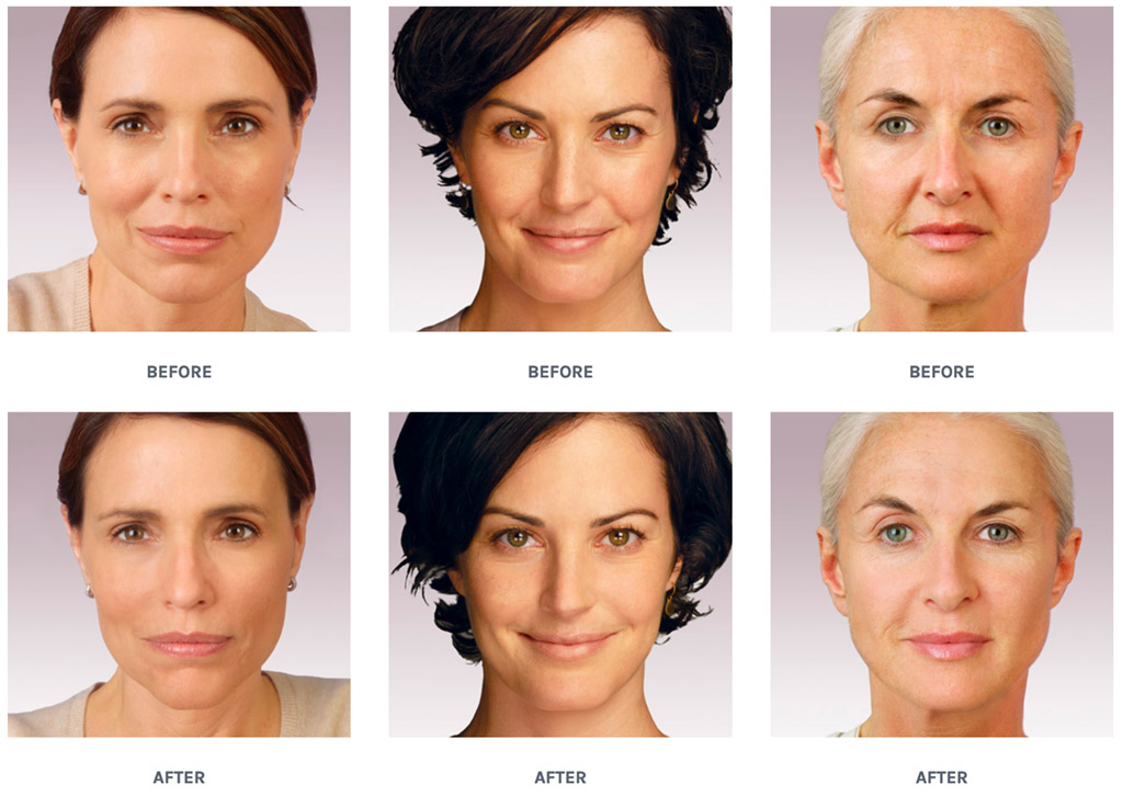 Juvederm - RenewMD Beauty & Wellness Medspa Fremont