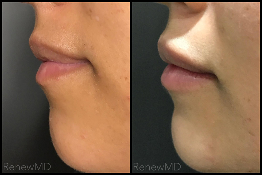 Juverderm Lip Filler Before and After