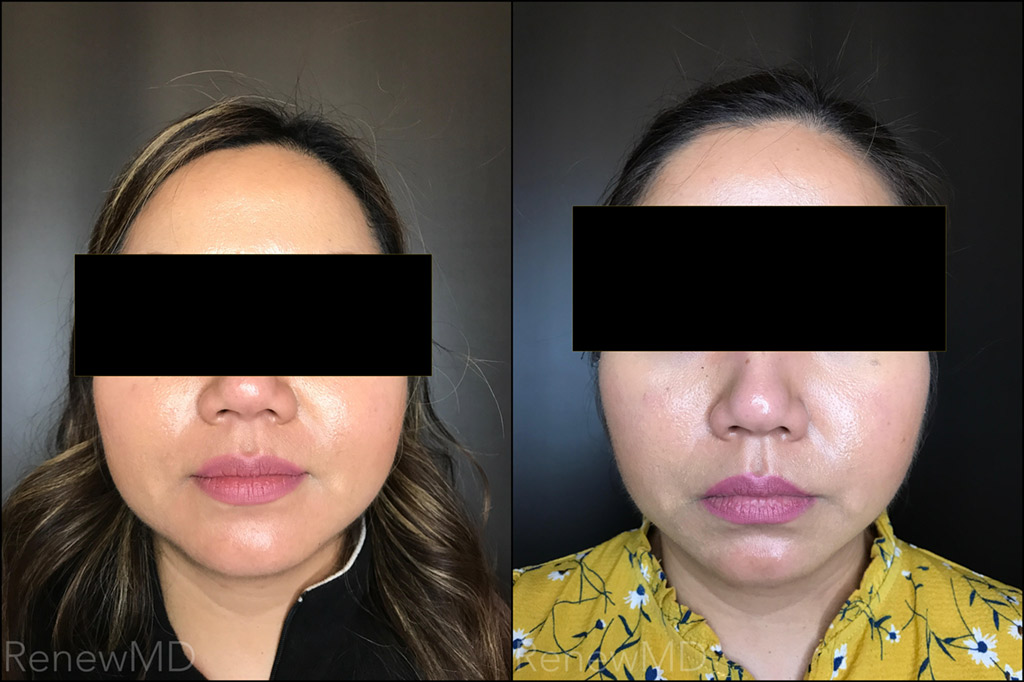 Botox Face Thinning Before and After