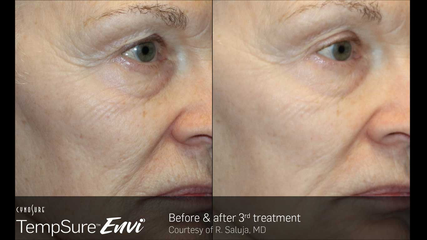 TempSure Envi Before and After